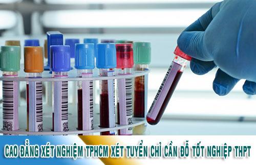 Cao đẳng xét nghiệm TPHCM xét tuyển chỉ cần đỗ tốt nghiệp THPT