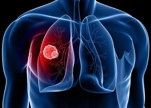 Dự tính đến năm 2020, ở Việt Nam mỗi ngày sẽ có thêm 90 người mắc ung thư phổi.
